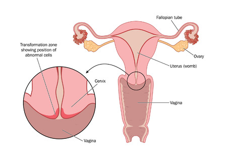 Diagram of the cervix showing where abnormal cells develop