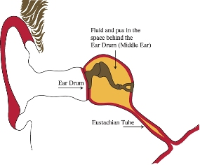 fluid and pus in the space behind the ear drum (middle ear)