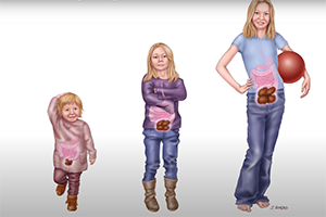 Graphic of 3 children showing constipation